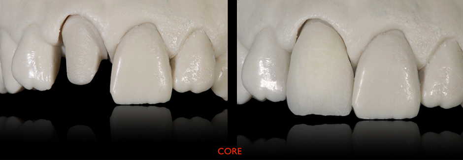 Patient case: Individual anterior crown of VITAPM®9