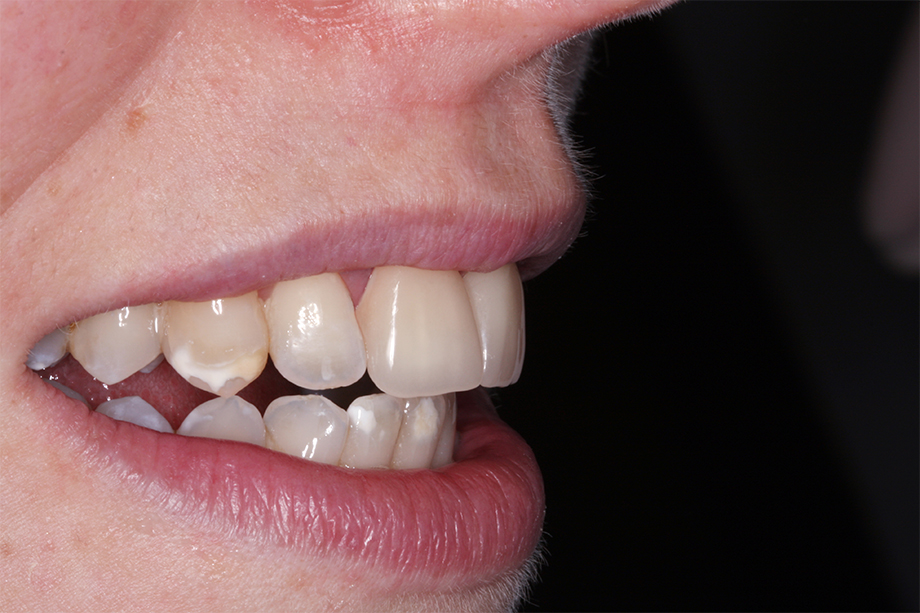 Abb. 6: Nach dieser positiven Erfahrung möchte die Patientin nun auch die übrigen Zähne versorgen lassen.