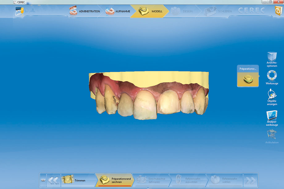 Fig. 3: Digital model of the upper jaw in the CEREC V4.2 software, generated using the CEREC Omnicam.