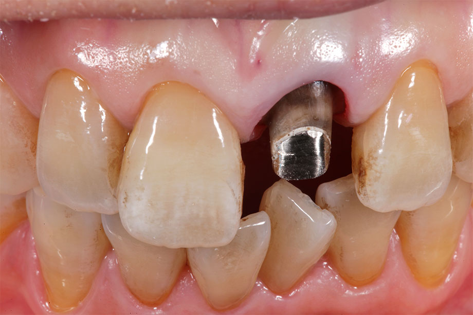 Fig. 2 After the crowns have been removed, discolored