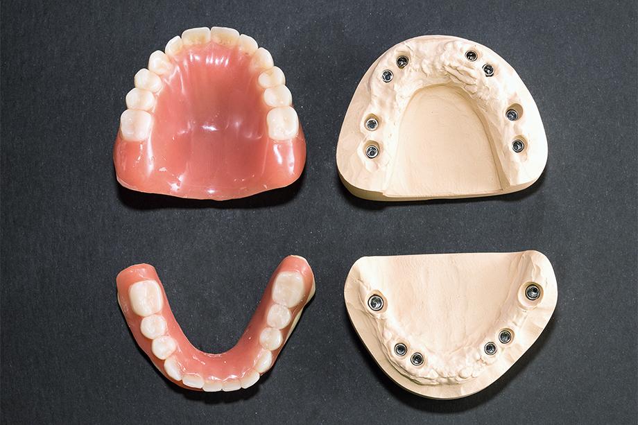 Abb. 1 Meistermodelle mit Implantatpfosten und Immediatprothesen.