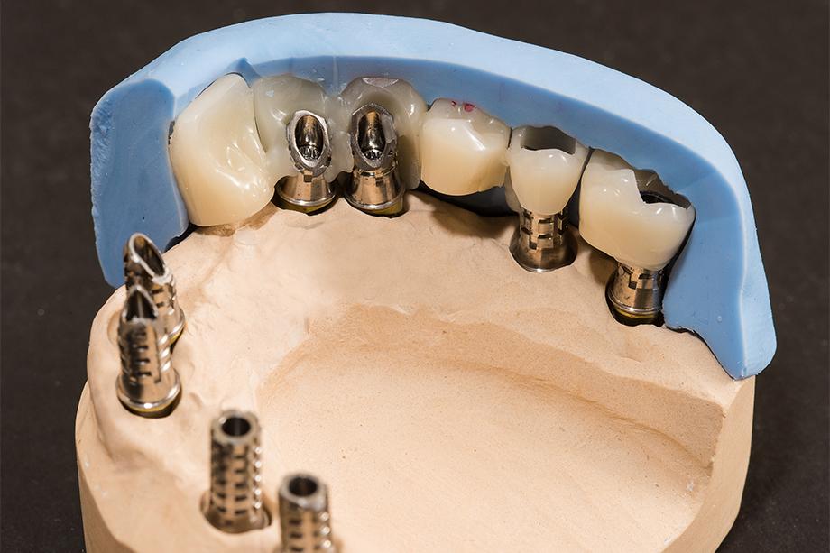 Fig. 4 A partir de la matriz de silicona se confecciona una prótesis provisional implantosoportada.