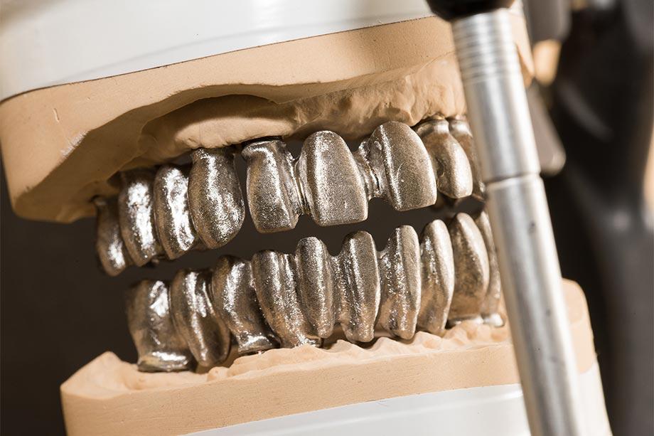 Abb. 7 Die drei aufgeschraubten Brückengerüste pro Kiefer im Artikulator.