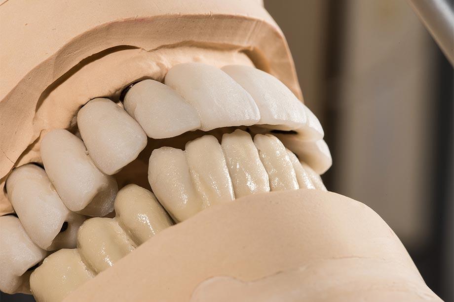 Fig. 9 Acabado proximal y morfológico tras la última prueba en boca.
