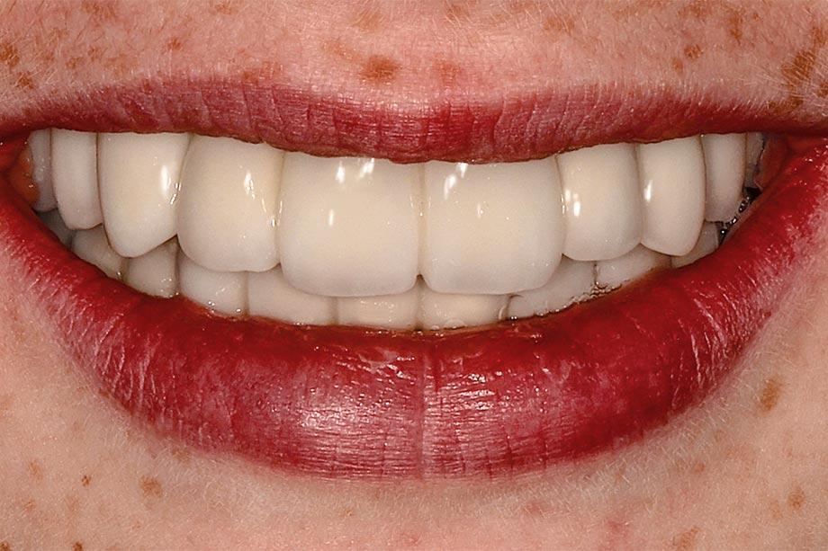 Fig. 11 La bonita sonrisa con una restauración natural y adaptada a la edad.