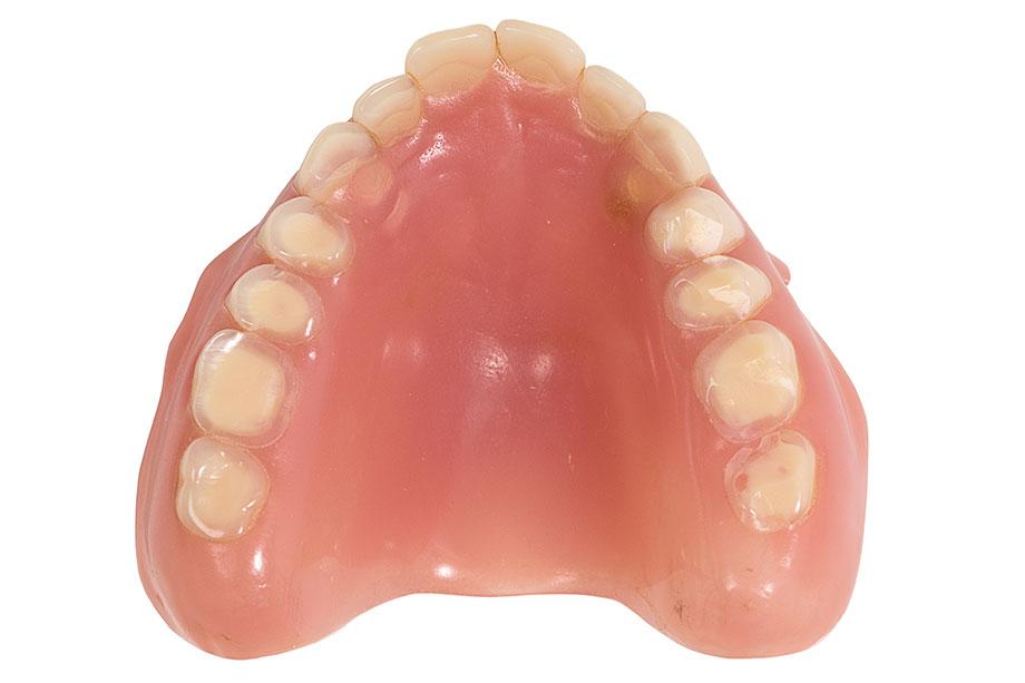 Fig. 3 Le protesi insufficienti sotto l'aspetto estetico e funzionale presentano massicce abrasioni occlusali.