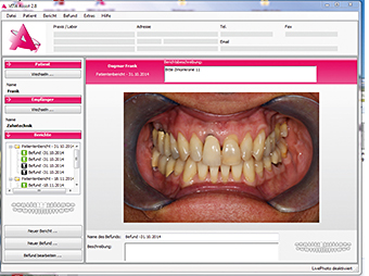 Case study: Initial photographic situation - tooth 11 is to be newly restored.