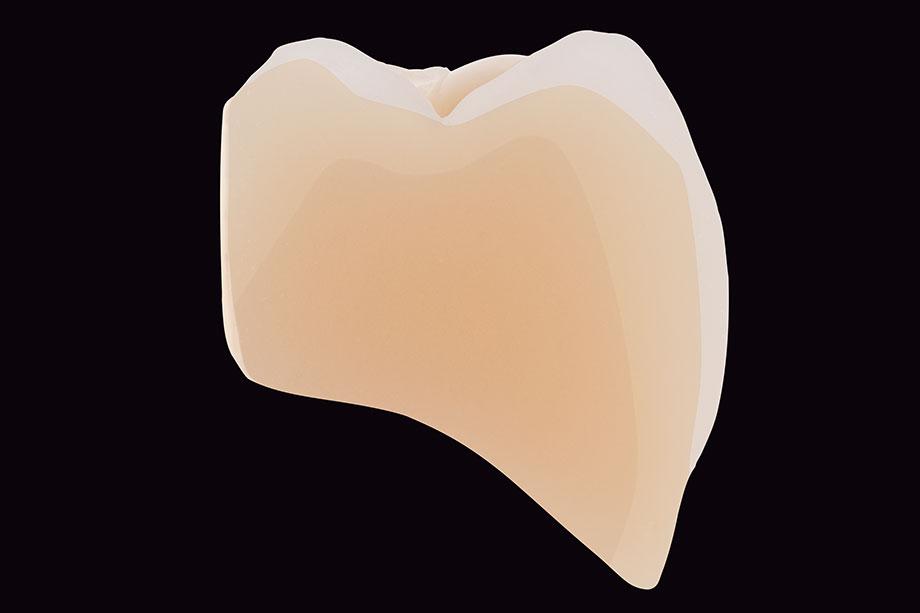La stratificazione anatomica si percepisce In tutti i denti protesici VITA.