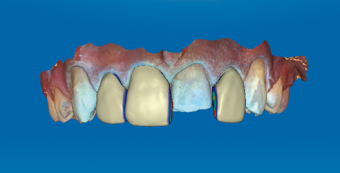 New prospects and opportunities – digital dentistry 2.0 Fig. 2