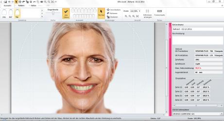 VITA ToothConfigurator Anwendung 2