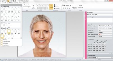 VITA ToothConfigurator Anwendungsbild 2