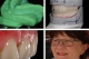 Funktionelle Totalprothetik LIVE am Patienten erarbeiten