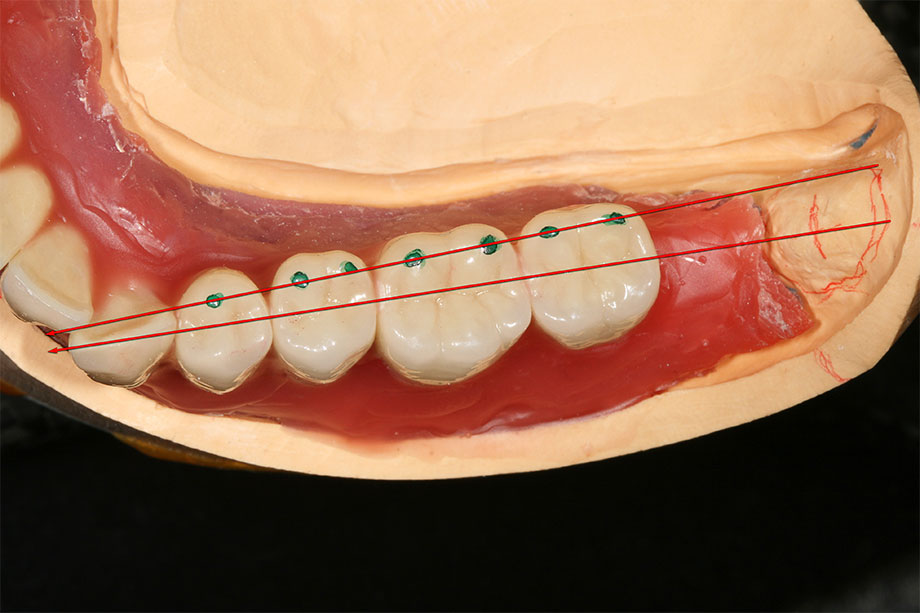 6.  Set up on center of the jaw ridge in the lower jaw (green points =lingual margin).