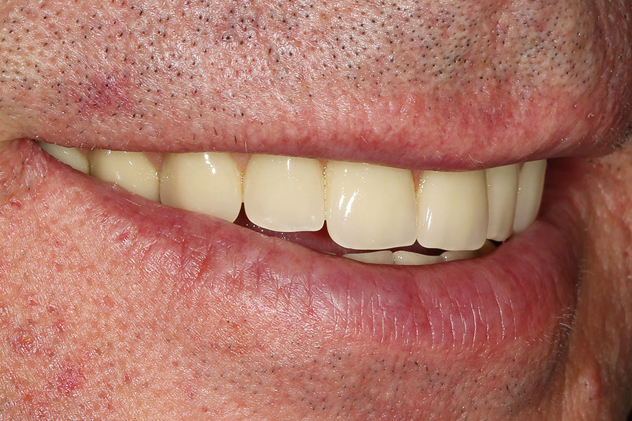 10. Final, integrated restoration in the patient's mouth.