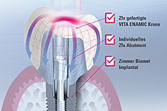 An overall system consisting of implants (Zimmer Biomet), Zfx abutments and VITA ENAMIC hybrid ceramics.