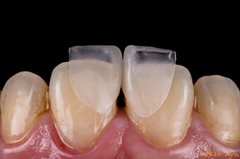 CEREC Digest: Clinical case by Hsuan Chen