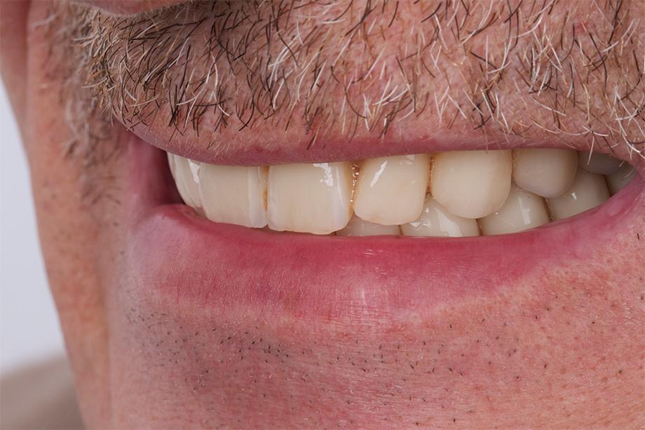 Die Inzisalkanten der Oberkieferinzisiven passten zum Lippenverlauf.