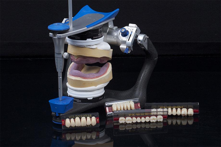 Nach der patientengerechten Artikulation der Meistermodelle konnte mit der Aufstellung begonnen werden.