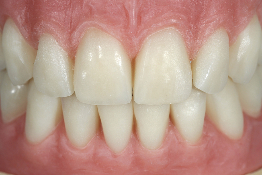 Auf die Umsetzung in Kunststoff folgte das Abstrahlen der Zähne und des vestibulären Lippenschilds mit Aluminiumoxid.