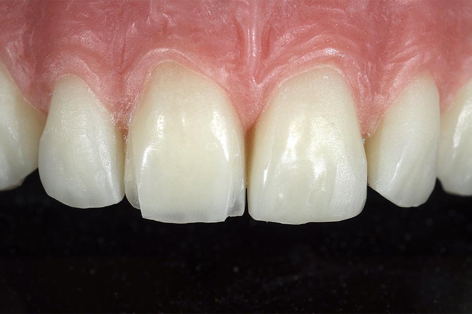 Die für die Individualisierung reduzierten mesialen und distalen Flanken des Konfektionszahns 11.