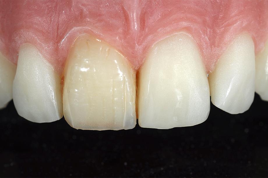 Nachdem die Malfarbe mittels Lichthärtung fixiert worden war, wurde der gesamte Zahn 11 mit einer Glasur versiegelt.